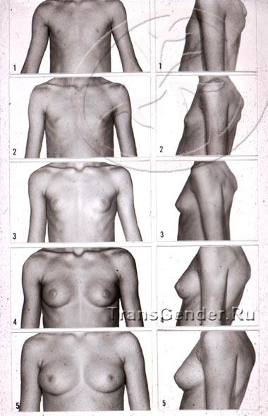 Первое развитие груди у трансексуалок