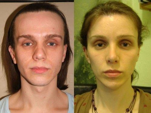 priem-estrogenov-u-transvestitov